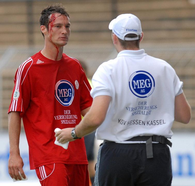 Michael K�mmerle (KSV Hessen Kassel) mit Platzwunde